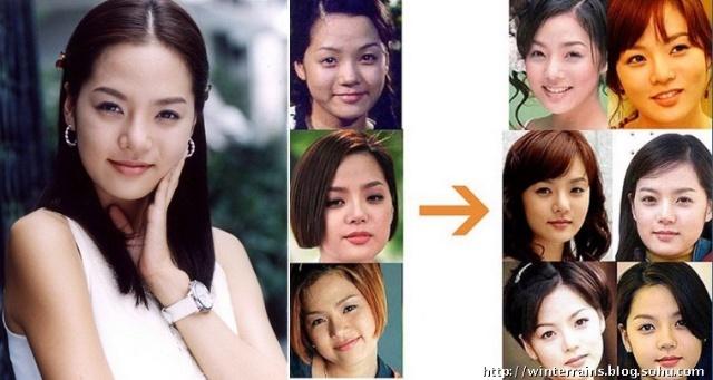 尹贤淑整容手术前后对比照发布后吸引了众多网民围观