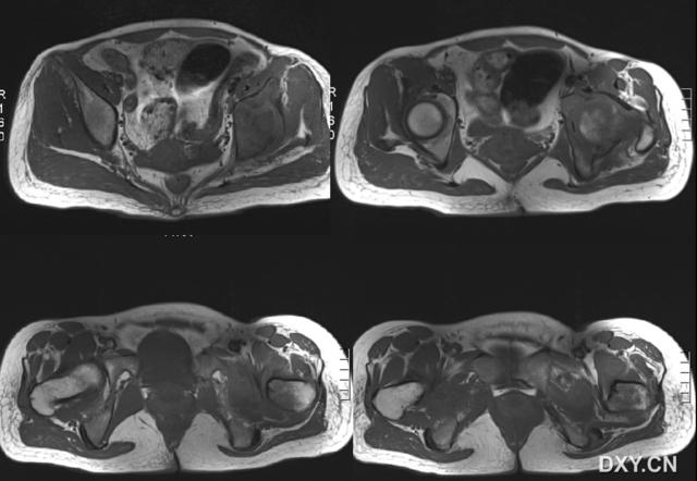 左髋关节骨性关节炎_左髋关节结核-渭南市中医医院CT/MRI室(李永强)-搜狐博客
