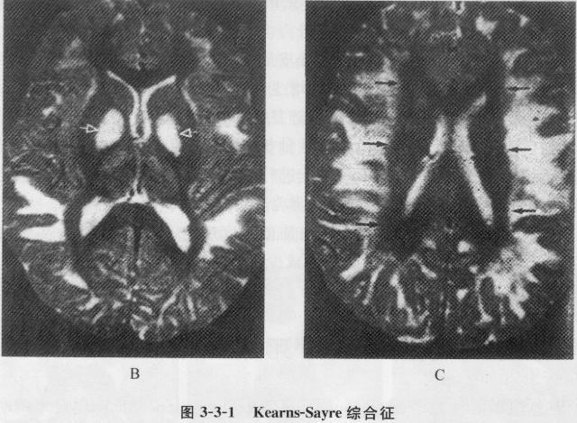 注:A.轴位T2WI示黑质(箭)和颞叶周围白质T2信号延长;B.苍白球、外囊、大脑半球周围白质T2信号延长;C.大脑周围白质T2信号显著延长,与未受累的脑室周围白质形成明显分界(箭) 四、莱伯遗传性视神经病 莱伯遗传性视神经病(Leber hereditary optic neuropathy,LHON)为mtDNA突变引起,经母亲遗传。 【病理】病理改变为视束、视交叉和视神经的中央部分轴突变性和脱髓鞘。 【临床表现】 患者儿童期正常,随年龄增加逐渐失明,通常在18~40岁视力丧失。男性患者占60%~9
